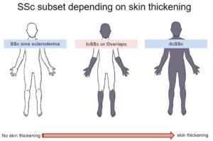 Permalink auf:Was ist Sklerodermie?